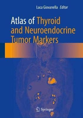 Thyroid and Neuroendocrine Tumors Markers (Atlas)