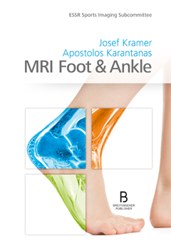 MRI Foot & Ankle