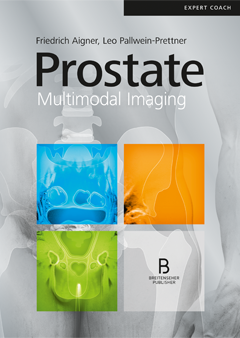 Prostate – Multimodal Imaging